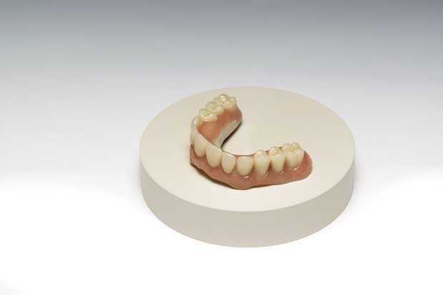 Overdenture on Dental Disc (CBHR) v2.jpg