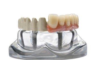 Straumann adds JUVORA dental disc to its portfolio - British