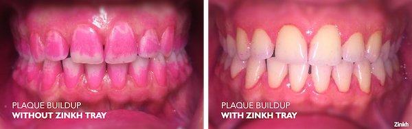Zinkh-patient-B.jpg