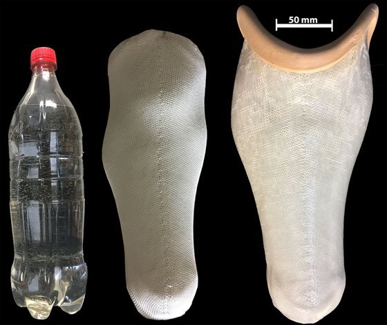 The-first-of-its-kind-prosthetic-socket-made-from-plastic-water-bottle-resize560x470.jpg